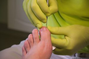 evitar los hogos en los pies, remedios